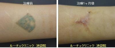 切除によるタトゥー除去