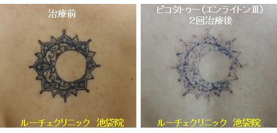 タトゥー除去ピコレーザー、背中、2回、黒