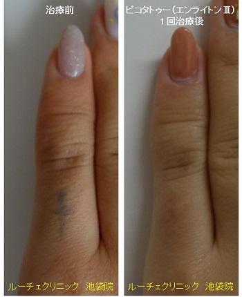 タトゥー除去ピコレーザー、指、1回、黒