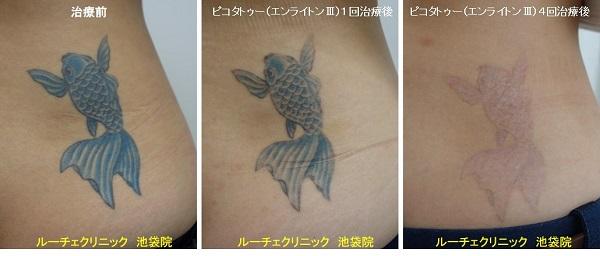 タトゥー除去ピコレーザー、腰、4回、黒、水色