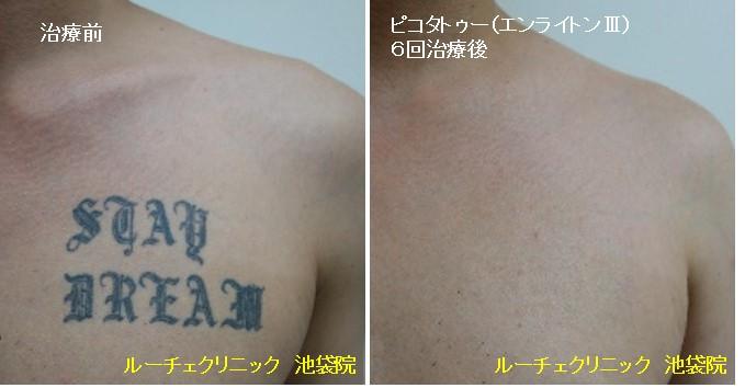 タトゥー除去ピコレーザー、胸、6回、黒