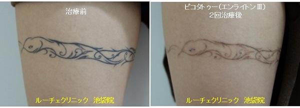 タトゥー除去ピコレーザー、腹、2回、黒