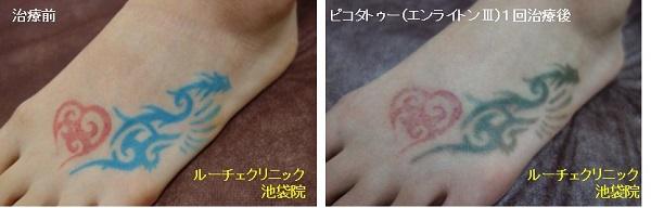 タトゥー除去ピコレーザー、足、1回、赤、水色