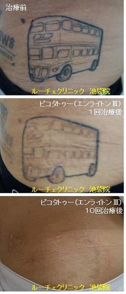タトゥー除去ピコレーザー、腹、10回、黒