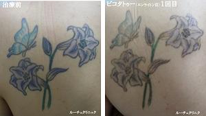 タトゥー除去ピコレーザー、背中、1回、黒、緑、水色、紫