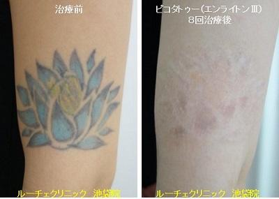 タトゥー除去ピコレーザー、腕、8回、黒、水色、黄色