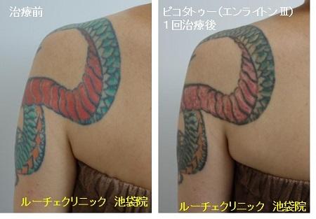 タトゥー除去ピコレーザー、腕、1回、黒、赤、緑、オレンジ