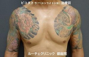 タトゥー除去、ピコレーザー、胸、1回、黒、赤、緑、黄色