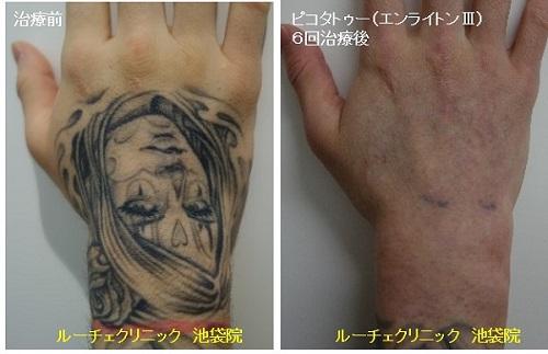 タトゥー除去ピコレーザー、手、6回、黒