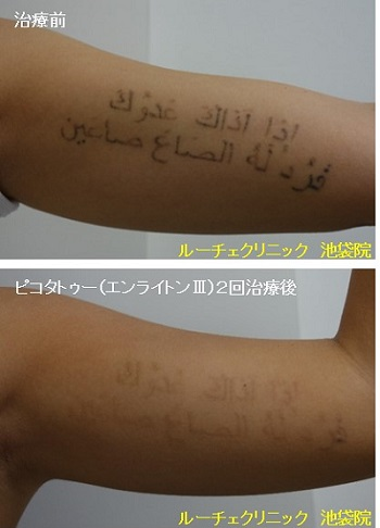 タトゥー除去ピコレーザー、腕、2回、黒