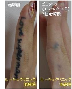タトゥー除去ピコレーザー、指、7回、黒