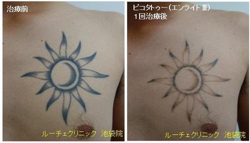 タトゥー除去ピコレーザー、胸、1回、黒