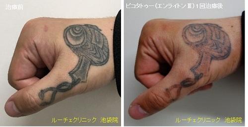 タトゥー除去ピコレーザー、手、1回、黒