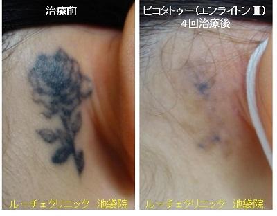 タトゥー除去ピコレーザー、項、4回、黒