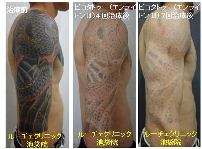 タトゥー除去ピコレーザー、腕、7回、黒、赤、黄色