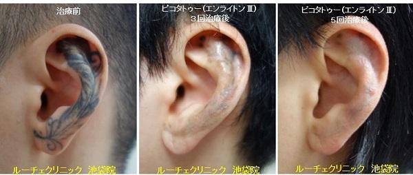 タトゥー除去ピコレーザー、耳、5回、黒