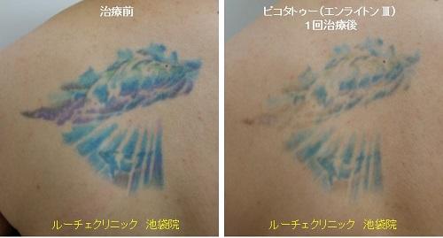 タトゥー除去ピコレーザー、背中、1回、黒、紫、水色、青、緑