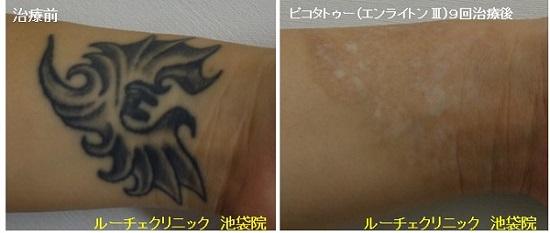 タトゥー除去ピコレーザー、手首、9回、黒