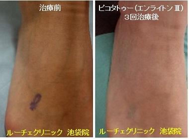 タトゥー除去ピコレーザー、足、3回、紫