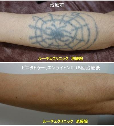 タトゥー除去ピコレーザー、腕、8回、黒
