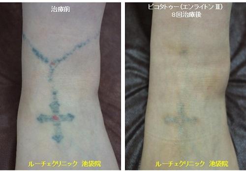 タトゥー除去ピコレーザー、足、8回、黒、赤