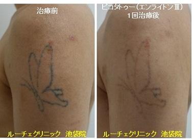 タトゥー除去ピコレーザー、1回、腕、黒