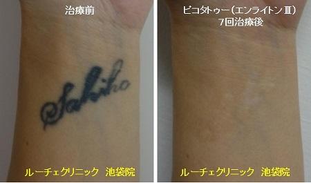 タトゥー除去ピコレーザー、7回、手首、黒