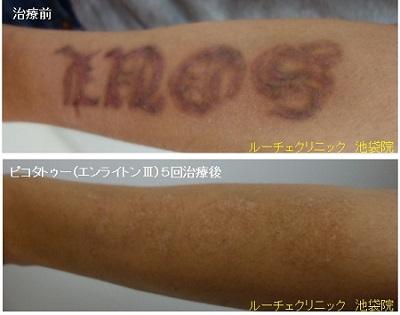 タトゥー除去ピコレーザー、5回、腕、黒