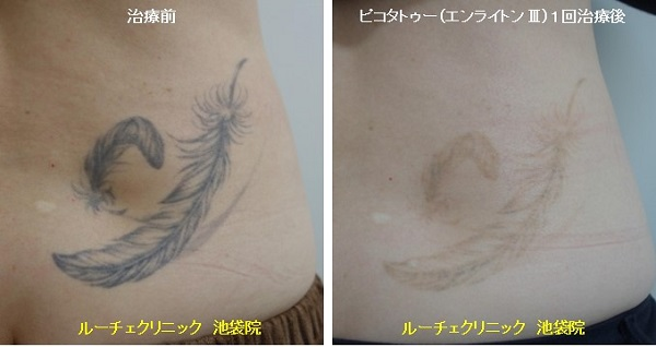 タトゥー除去ピコレーザー、1回、腰、黒