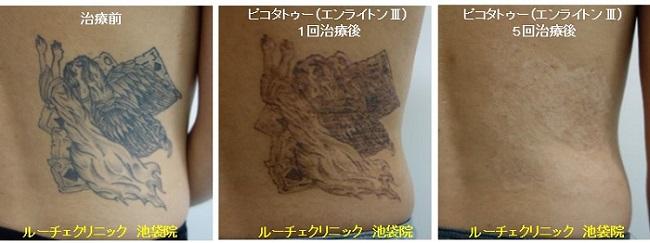 タトゥー除去ピコレーザー、5回、腰、黒