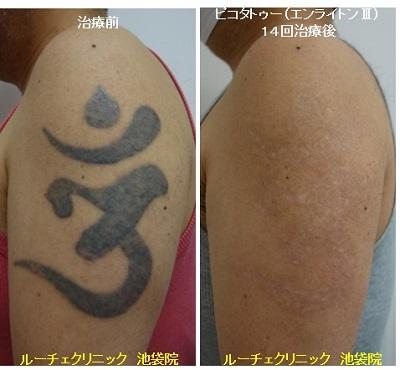 タトゥー除去ピコレーザー、14回、腕、黒