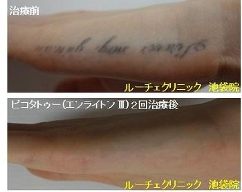 タトゥー除去ピコレーザー、2回、手、黒