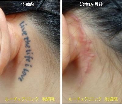 切除によりタトゥー除去