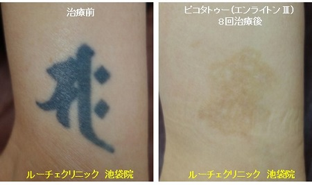 タトゥー除去ピコレーザー、8回、足、黒