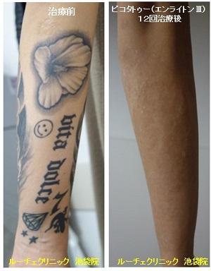 タトゥー除去ピコレーザー、12回、腕、黒