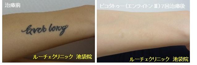 タトゥー除去ピコレーザー、7回、腕、黒