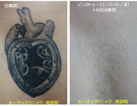 タトゥー除去ピコレーザー、14回、胸、黒