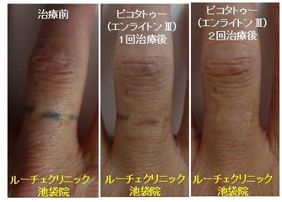 タトゥー除去ピコレーザー、2回、指、黒