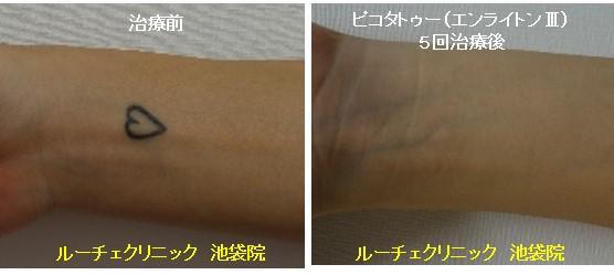 タトゥー除去ピコレーザー、5回、手首、黒