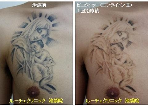 タトゥー除去ピコレーザー、1回、胸、黒