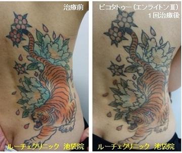 タトゥー除去ピコレーザー、1回、背中、黒、赤、オレンジ、ピンク、水色、緑、黄色