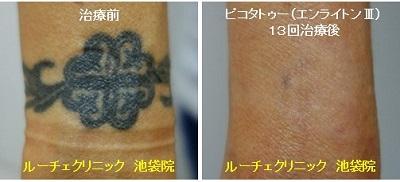 タトゥー除去ピコレーザー、13回、手首、黒