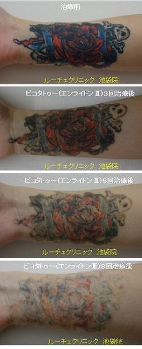 タトゥー除去ピコレーザー、8回、手首、黒、赤、青