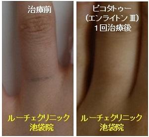 タトゥー除去ピコレーザー、1回、指、黒