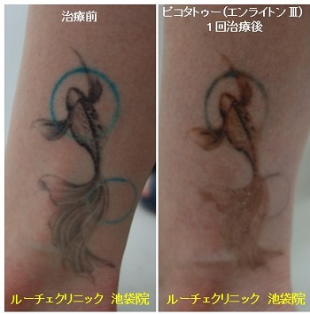 タトゥー除去ピコレーザー、1回、足、黒、水色