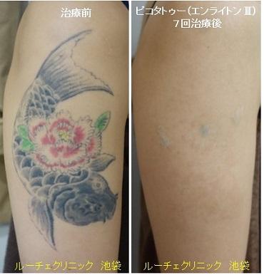 タトゥー除去ピコレーザー、7回、腕、黒、赤、緑、黄色