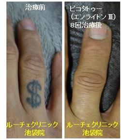 タトゥー除去ピコレーザー、8回、指、黒