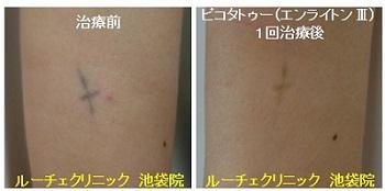 タトゥー除去ピコレーザー、1回、手首、黒