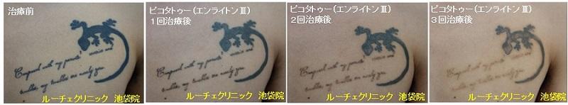 タトゥー除去ピコレーザー、3回、胸、黒