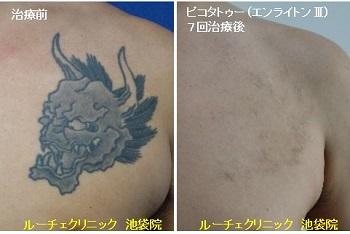 タトゥー除去ピコレーザー、7回、胸、黒